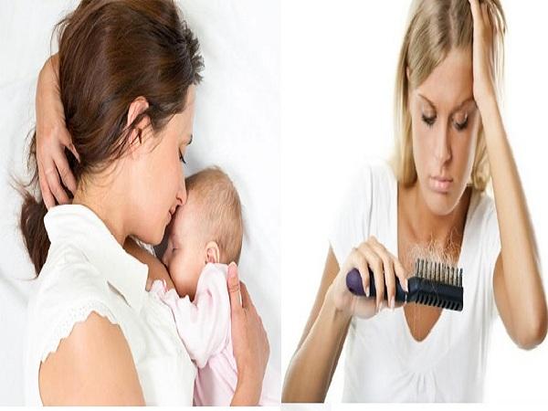 Mách mẹ bỉm sữa 6 mẹo giảm rụng tóc sau sinh