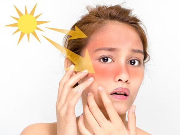 Top 4 kem chống nắng cho da dầu được khuyên dùng nhất