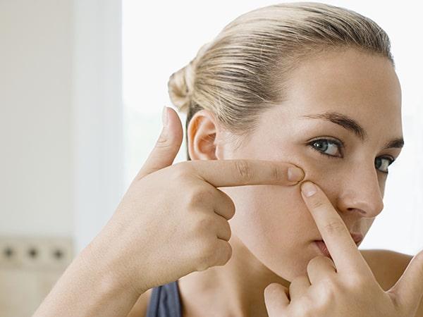 Bật mí cách trị mụn ẩn hiệu quả không lo thâm sẹo