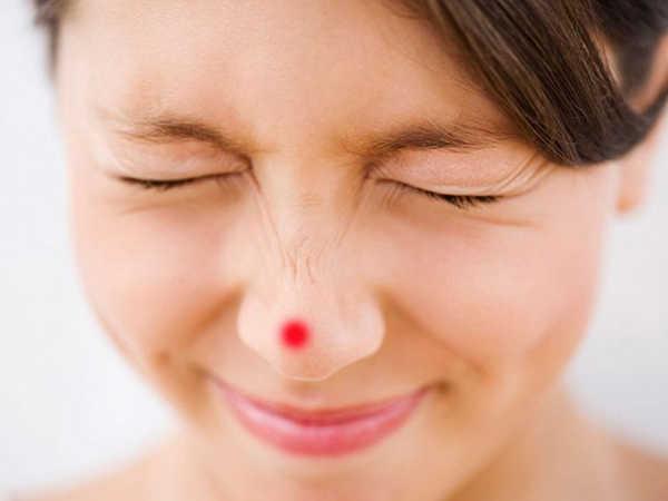 Cách trị mụn bọc sưng đỏ hiệu quả cấp tốc tại nhà